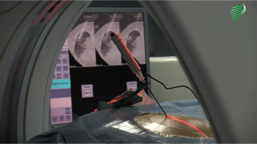 Lung radiofrequency ablation