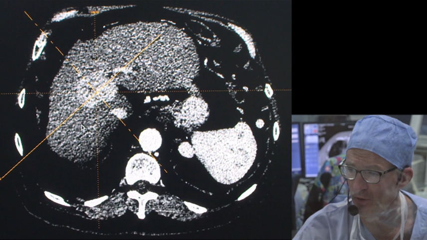 TACE on single liver HCC with Lifepearl® Microspheres